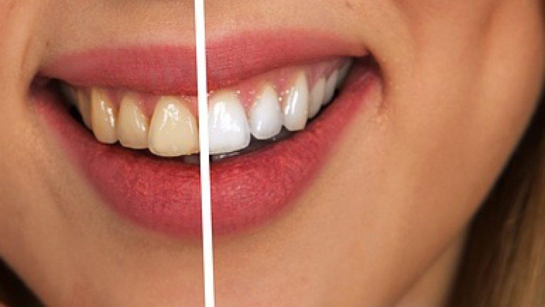 הלבנת שיניים ZOOM לתוצאות מדהימות בטיפול אחד